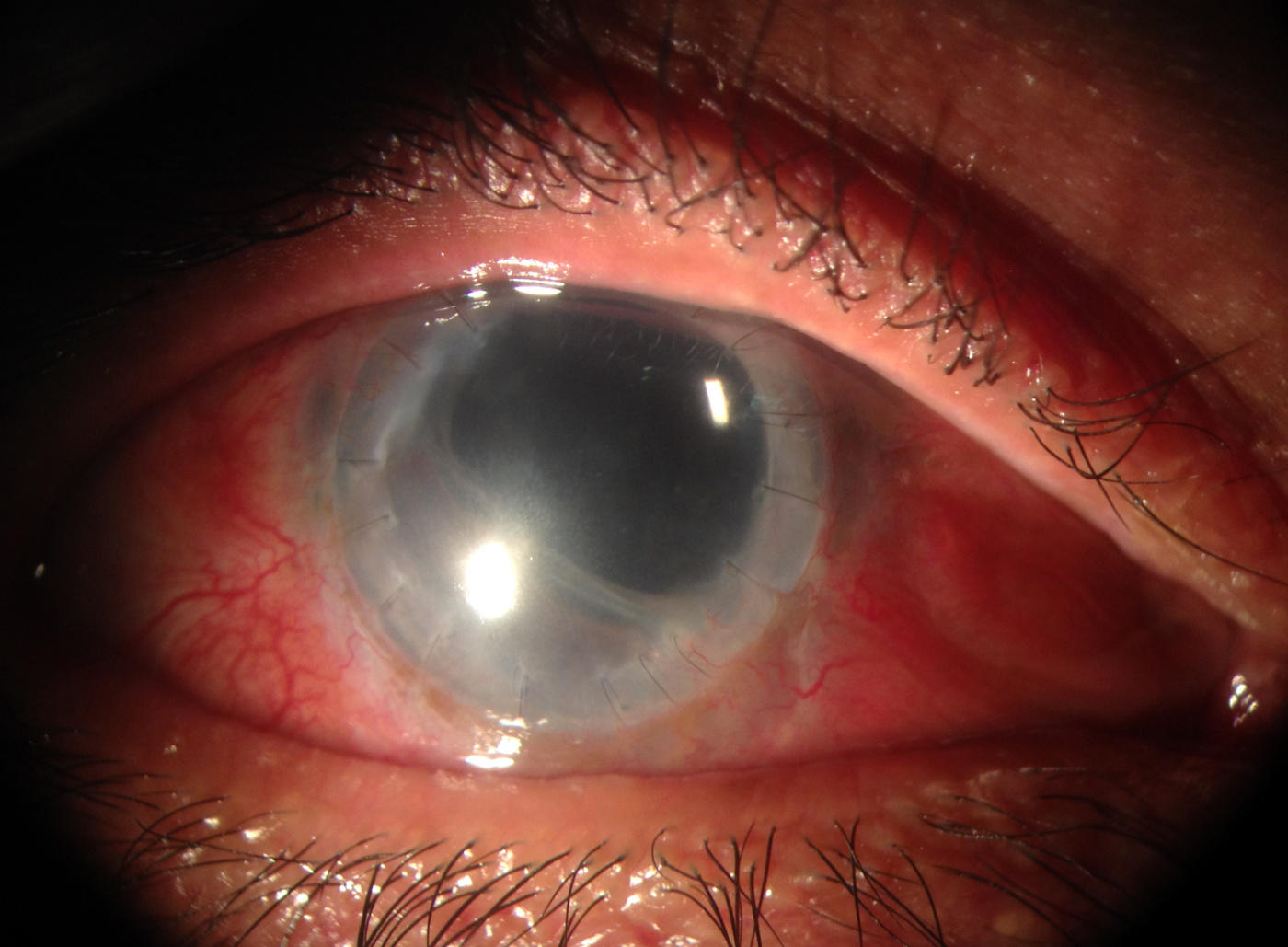 Anterior aspect of the eye showing the large diameter penetrating keratoplasty with the sutures still present