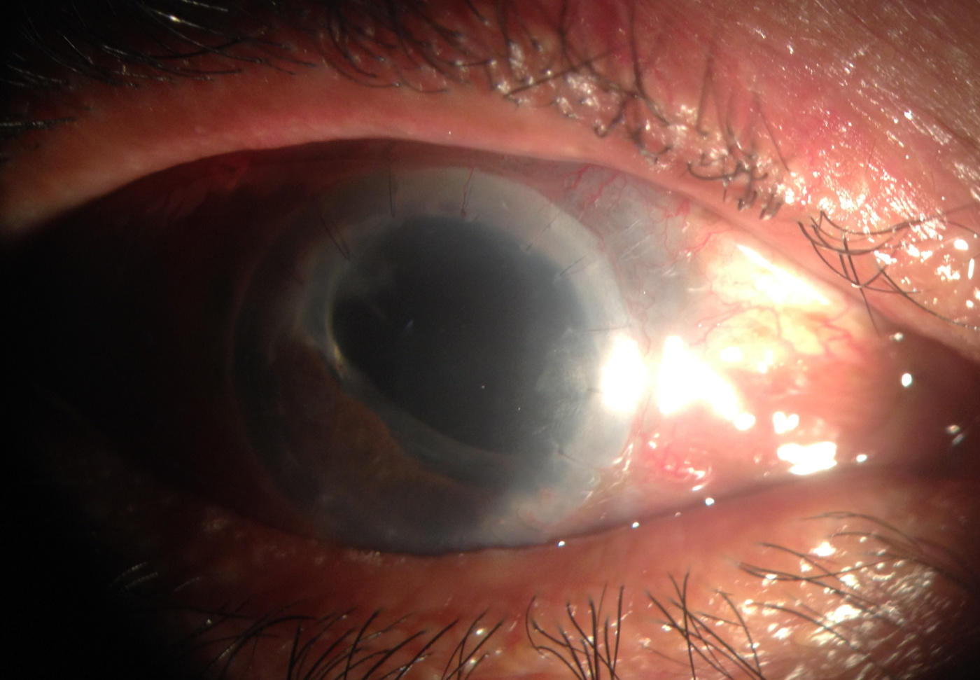 Anterior aspect of the eye showing the iris prolapse.