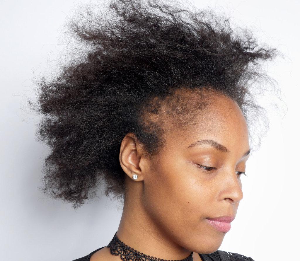 shea butter for hair loss