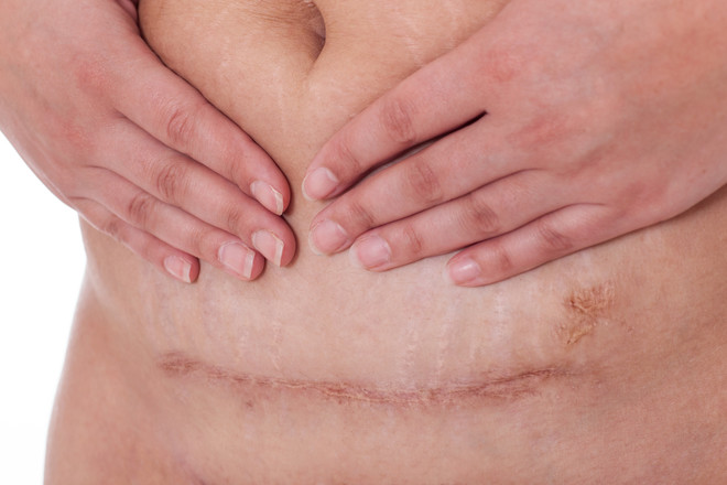C Sections Scars